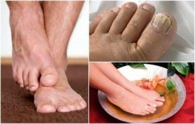 Du solltest die Symptome von Fußpilz erkennen können.