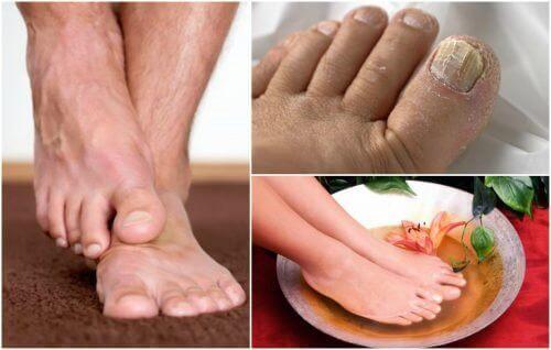 Zeigst du Symptome von Fußpilz?