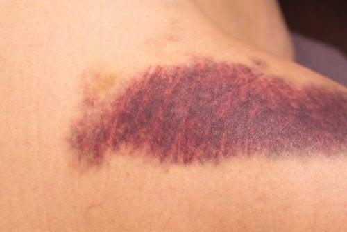 Rote Flecken aufgrund von Vitamin-K-Mangel