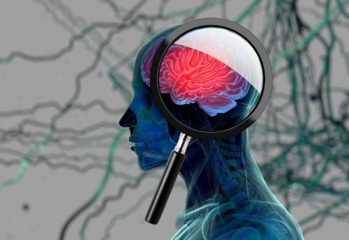 Alzheimer im Frühstadium erkennen