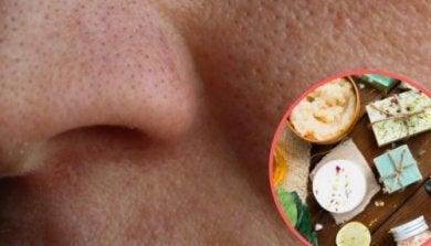 Diese Heilmittel helfen gegen große Hautporen.