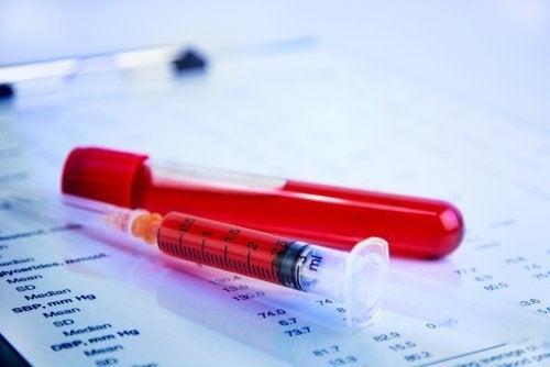 Kurkuma in der Menopause: blutverdünnende Wirkung