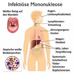 infektiöse Mononukleose