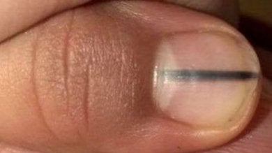 Eine schwarze Linie auf Nägeln kann Krebs signalisieren.