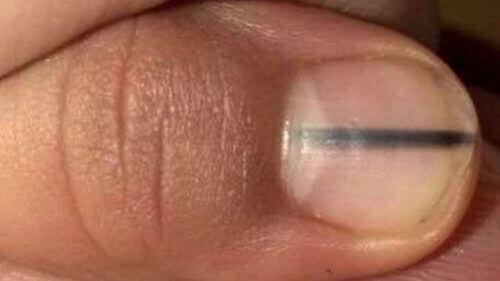 Schwarze Linie auf Nägeln als Anzeichen für Krebs?
