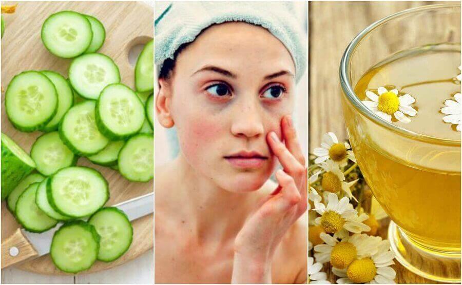 5 Naturheilmittel gegen Augenringe und Tränensäcke