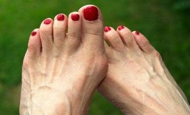 Fußprobleme - Hühneraugen und Hallux valgus