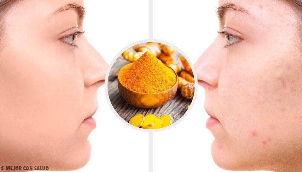 5 Kurkuma-Masken gegen Aknenarben