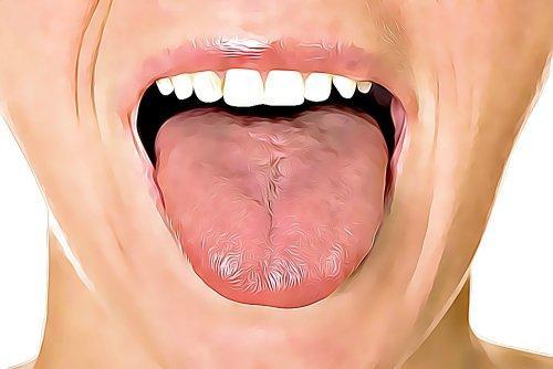 6 Heilmittel gegen Geschwüre im Mund