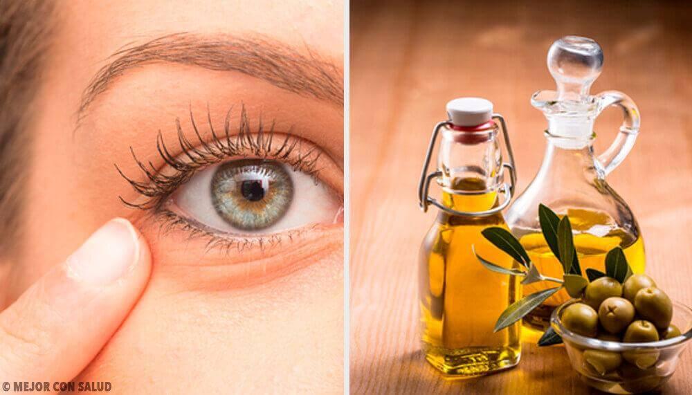 6 natürliche Heilmittel gegen Augenentzündungen