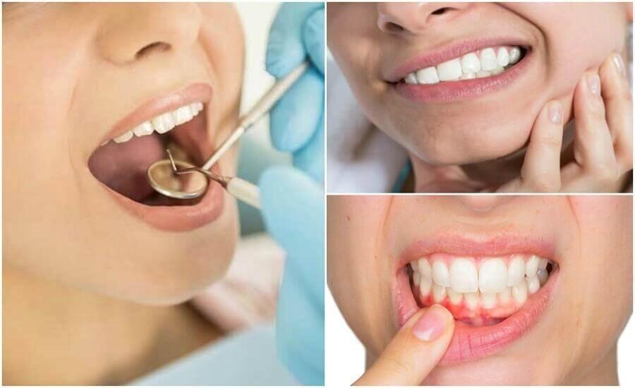 7 Anzeichen einer Zahninfektion