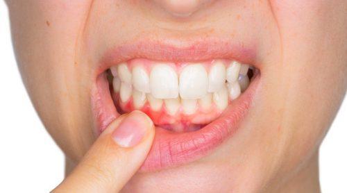 Anzeichen einer Zahninfektion-Eiter