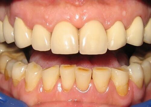 Anzeichen einer Zahninfektion-Entzündung