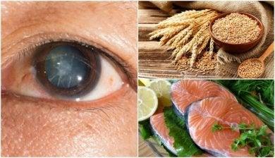 Diese 7 Lebensmittel helfen gegen Katarakte.