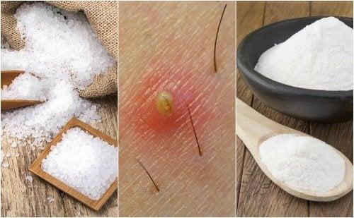 5 natürliche Mittel gegen eingewachsene Haare