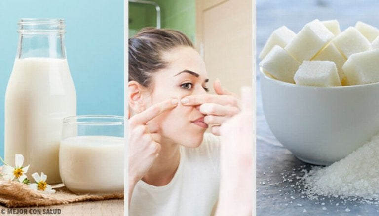 Mit diesen 4 Masken kannst du Hautunreinheiten eliminieren