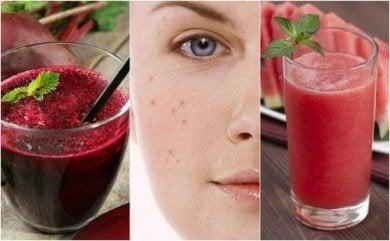Probiere ein entgiftendes Smoothie gegen Akne