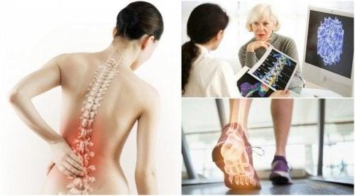 Osteoporose kann Rückenschmerzen verursachen