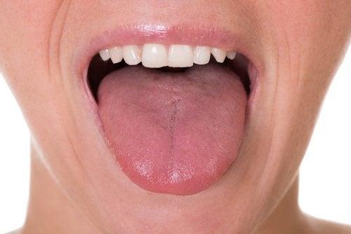 Zunge untersuchen, wenn der Hals belegt ist