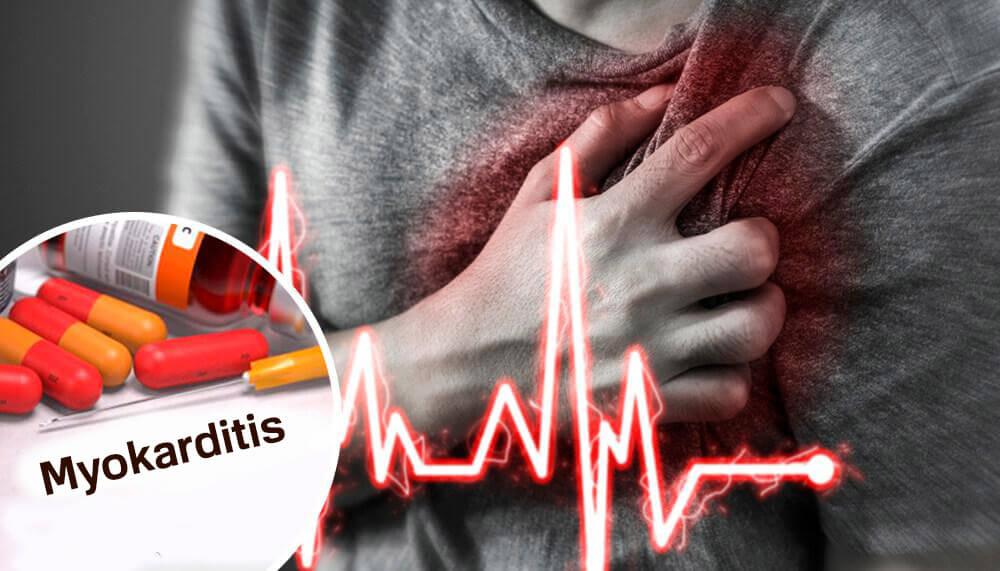 Was ist eine Myokarditis?