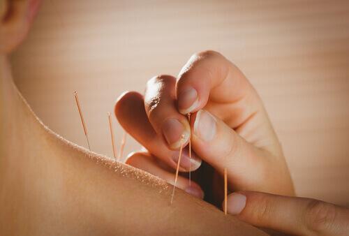 Akkupunktur - gegen Rückenschmerzen