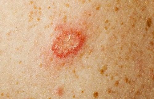 Was gegen Pilzerkrankungen hilft