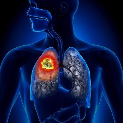 Ursachen von Lungenkrebs sind verschieden