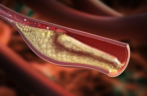 Zitronen-Diät und ihre gesundheitlichen Vorteile: Senkt den Cholesterinspiegel