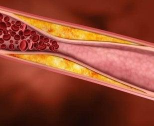 Vorteile von Traubensaft - Reduziert den Cholesterinspiegel