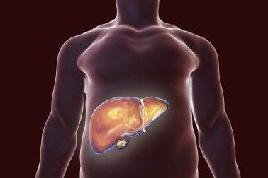 Heilmittel zur Entgiftung der Leber