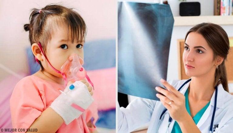 Behandlung von Lungenentzündung: alles, was du darüber wissen solltest
