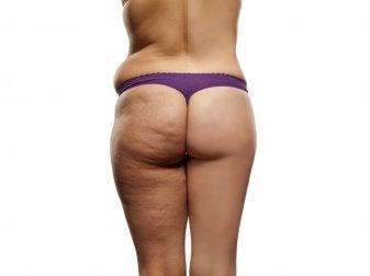 Wie du Cellulite durch Ernährung mindern kannst