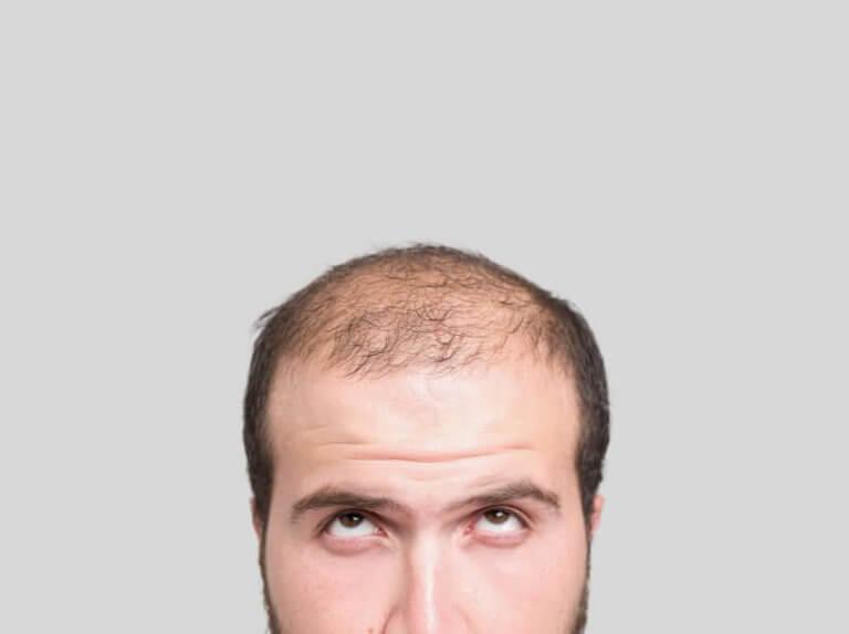 3 Hausmittel gegen Haarverlust