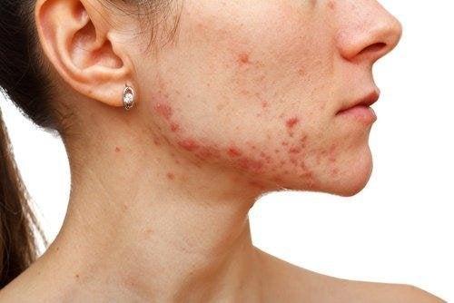 Hausmittel mit Kamille bekämpfen Akne