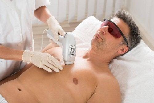 Laser-Haarentfernungen können Krebs verursachen