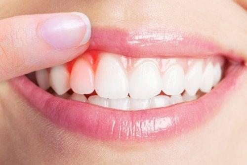 entzündetes Zahnfleisch