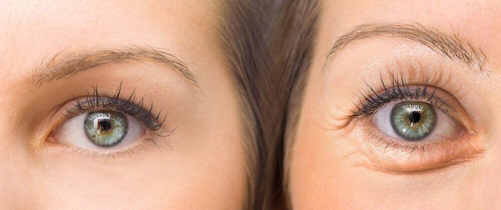 Wie du deine Augenlider mit 5 natürlichen Mitteln festigen kannst
