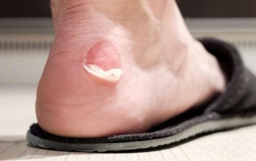 Wie du Blasen vermeiden und dafür sorgen kannst, dass deine Schuhe bequemer werden