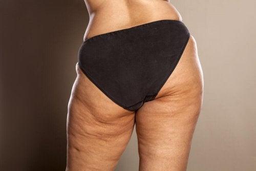 Cellulite durch Ernährung mindern