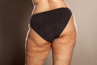 Entstehung und einfache und effektive Hausmittel zur Entfernung von Celluliten
