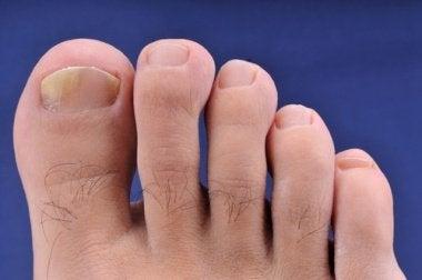 Flip-Flops und Hautkrankheiten