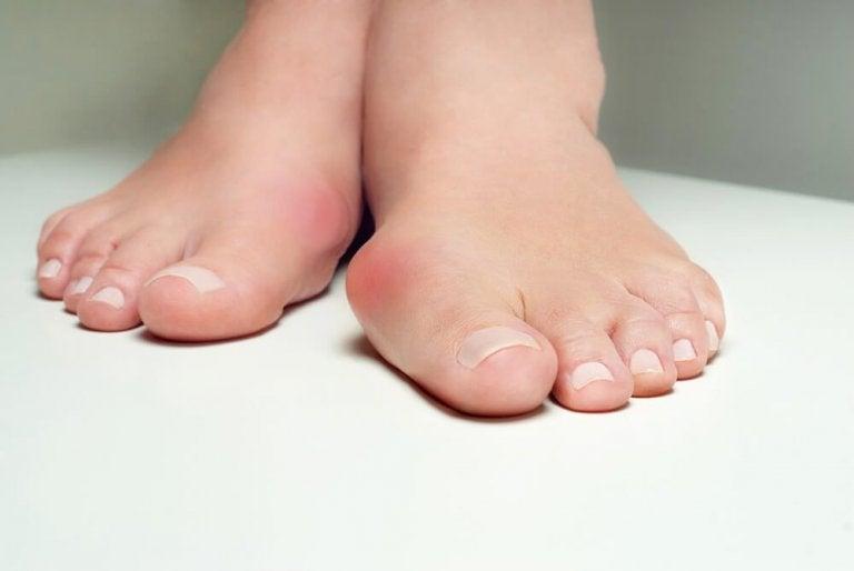 5 pflanzliche Heilmittel gegen Hallux Valgus