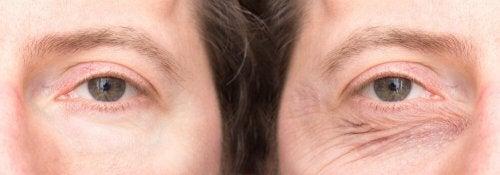 Augenlider mit natürlichen Mitteln festigen: Weitere Daten