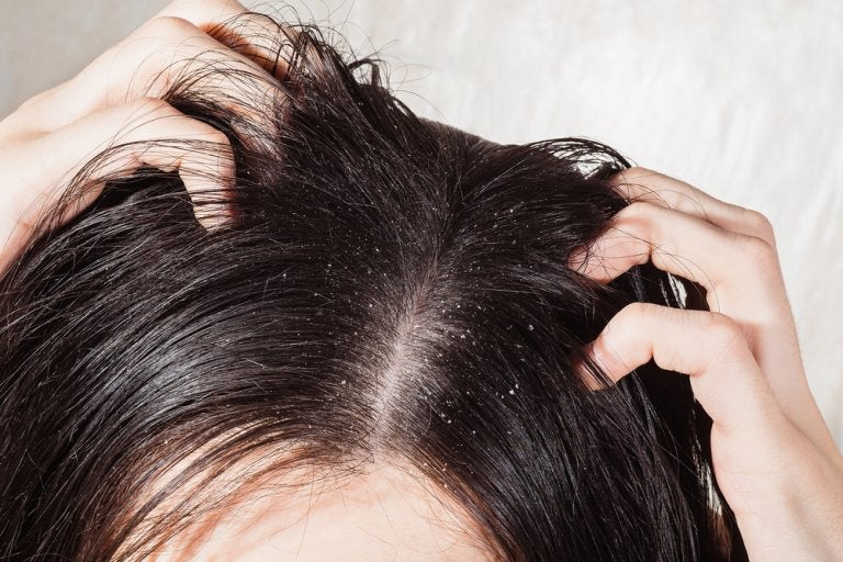 6 effektive Heilmittel gegen Kopfpilz