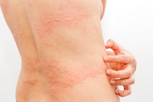 Nesselsucht Hautallergiediät