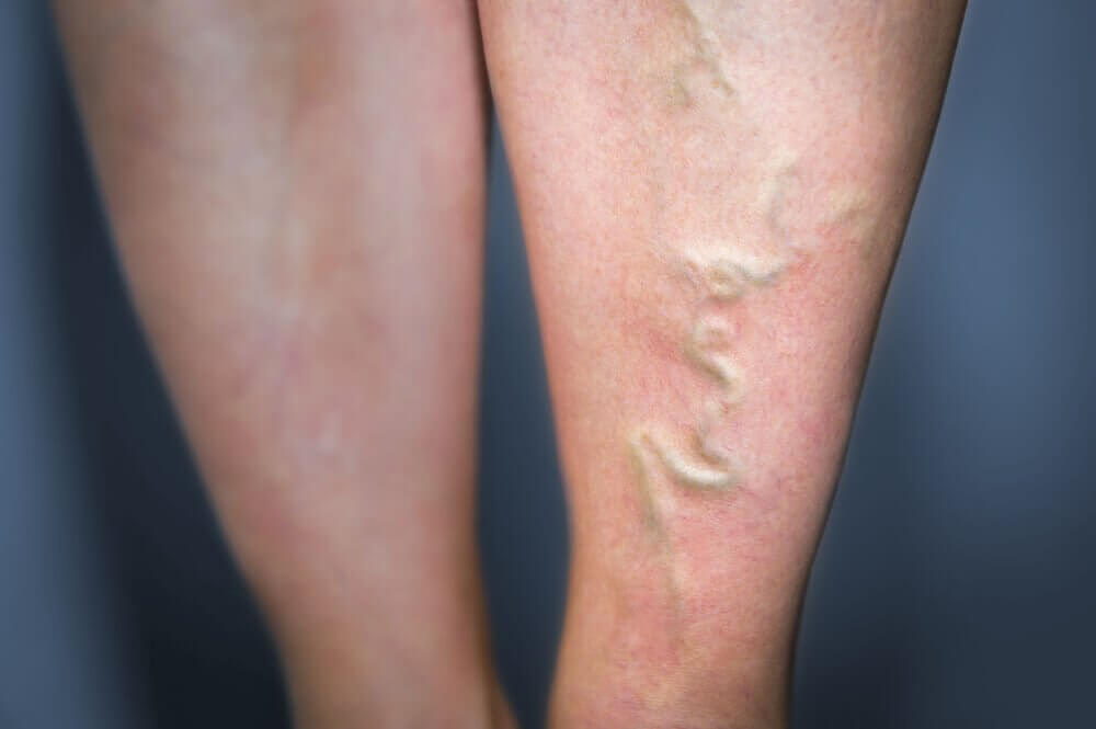 5 natürliche Heilmittel zur Behandlung von Phlebitis