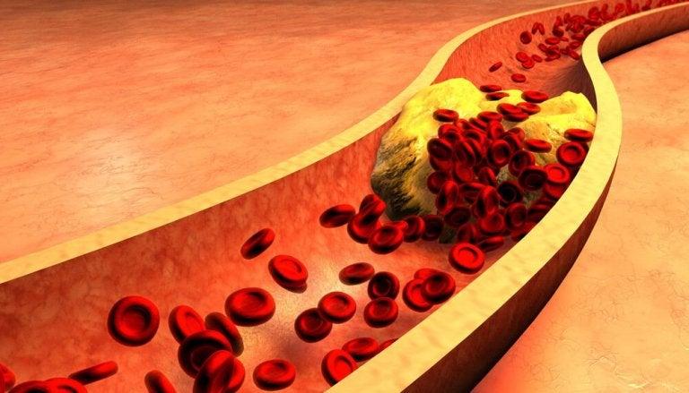 Kanariengras zur Reinigung der Arterien