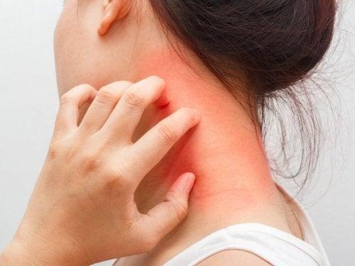 Schwarzkümmel kann Dermatitis verursachen