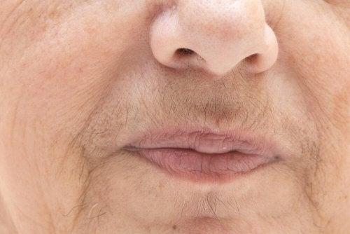 Ursachen für Hirsutismus sind hormonell