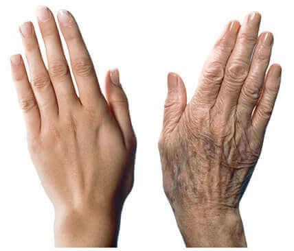 7 Tipps gegen Alterungserscheinungen an den Händen